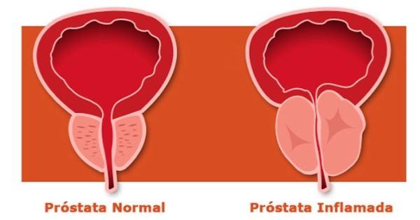 PSA normal de la próstata agrandada