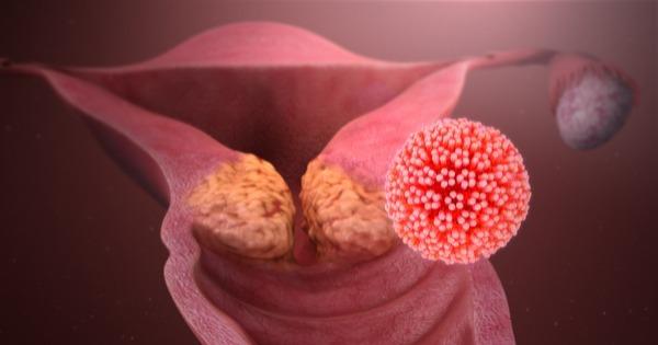 mancha branca no colo do utero é hpv