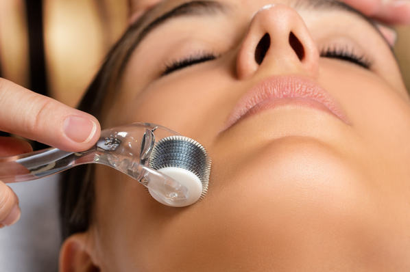 Microagulhamento facial