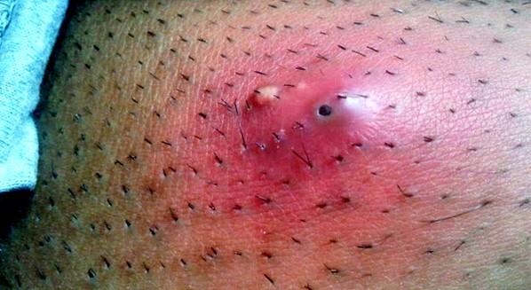 Abscesso: transmissão, sintomas e tratamento.