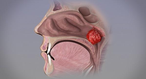 Como é feita a cirurgia de adenoide e quando é indicada