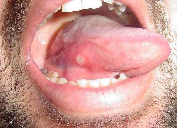 afta na lingua