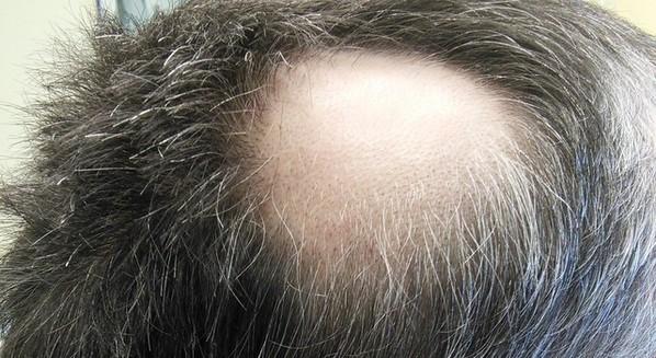 Alopecia: o que é, sintomas, tratamento