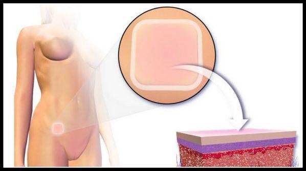 Anticoncepcional adesivo: qual é a eficácia, como usar e efeitos colaterais