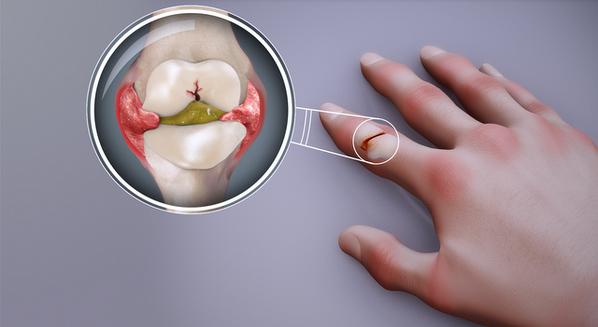 Artrite reumatoide tem cura: causas e tratamento