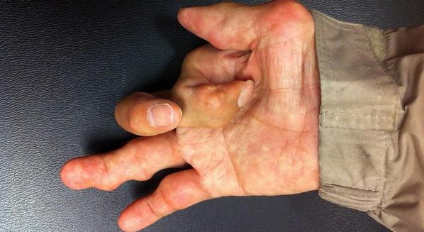 Mão com artrite