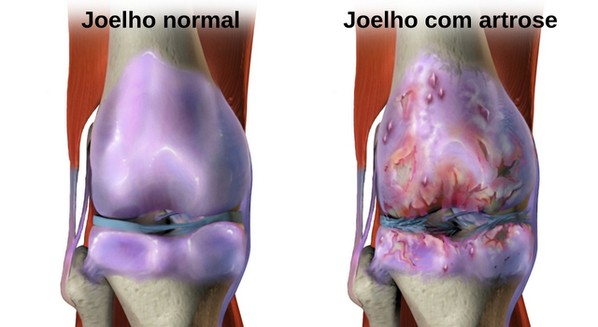 Joelho com artrose