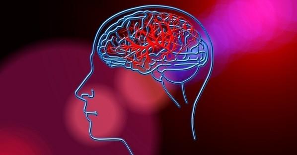 Acidente vascular cerebral (AVC) e seus sintomas