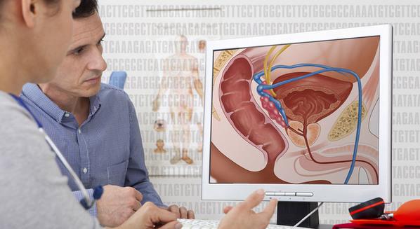 Câncer de próstata: o que é, sintomas e tratamento