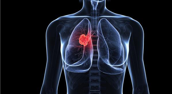 Câncer de pulmão: sintomas e tratamento