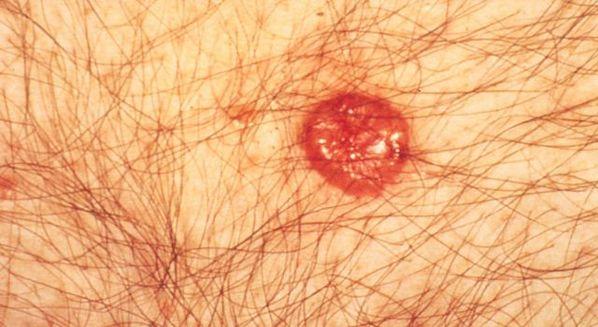 Carcinoma basocelular nodular: o que é, sintomas e tratamento
