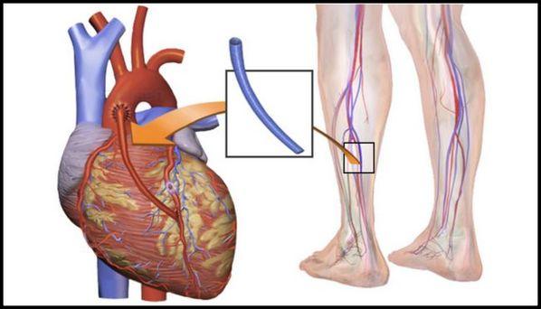 Cirurgia de ponte de safena: o que é, como é feita e como é a recuperação da revascularização do miocárdio