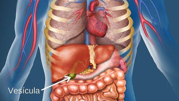 Cirurgia de pedra na vesícula (colecistectomia): como é feita e como é a recuperação?