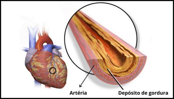 Colesterol alto: causas, sintomas e tratamento