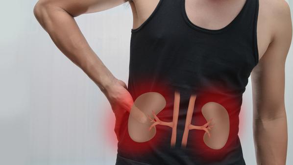 Cálculo renal: o que é, causas, sintomas e tratamento para pedra nos rins