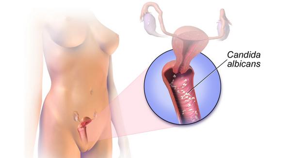 Corrimento vaginal branco