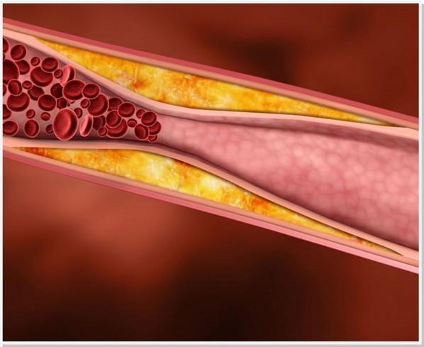 Doença Arterial Oclusiva Periférica