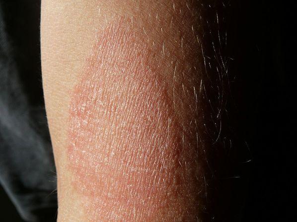 Dermatite eczematosa