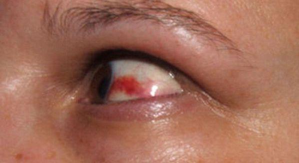 Derrame ocular: causas, sintomas e tratamento