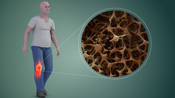 Doença de Paget: o que é, sintomas e tratamento