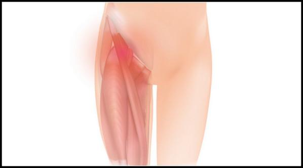 Dor na virilha: causas, sintomas e tratamento