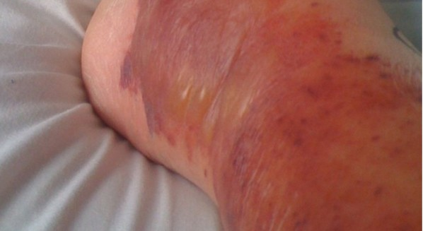 Sintomas de erisipela
