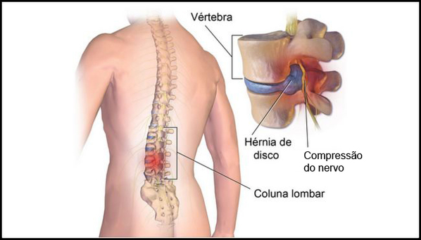 Hérnia de disco lombar e cervical: o que é, causas, sintomas e tratamento