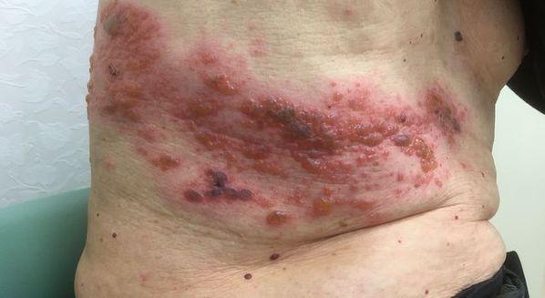 Sintomas de herpes-zóster