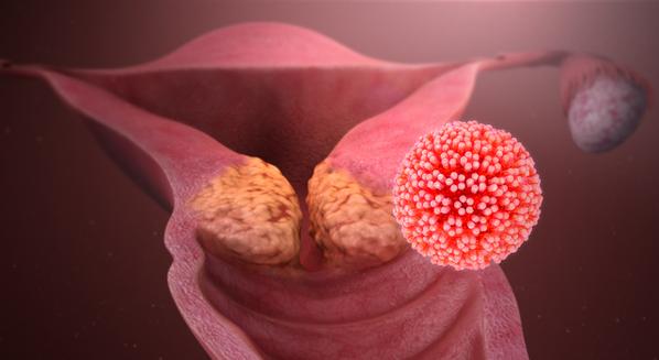 HPV engravidar