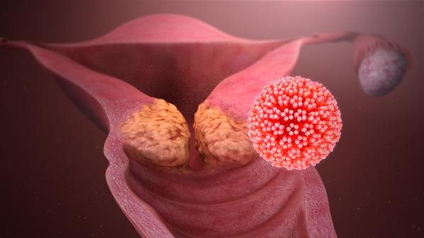 Was tun bei hpv virus