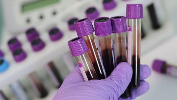 Leucocitose: o que é e quais as causas de leucócitos altos
