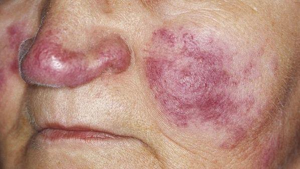Lúpus: o que é, sintomas e tratamento