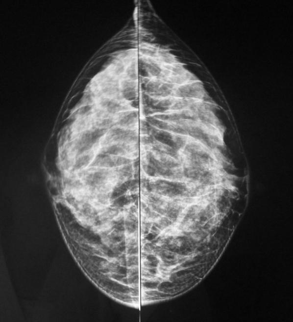 Mamografia apresentando mamas densas