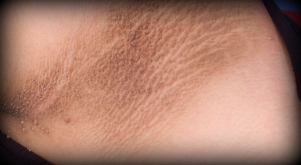 Mancha escura no pescoço relacionada com diabetes