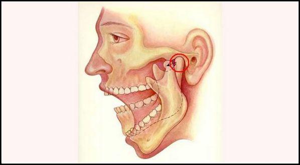 Maxilar: dor na mandibula
