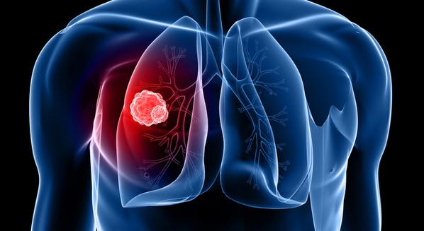 Neoplasia benigna e maligna (câncer): o que é e quais são as cartacterísticas