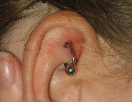 Piercing inflamado