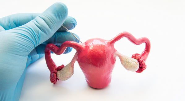 Síndrome dos ovários policísticos: o que é, sintomas e tratamento