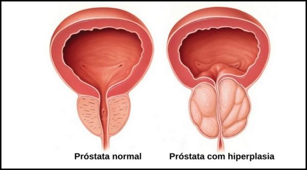 Hiperplasia prostática benigna HPB e câncer de próstata