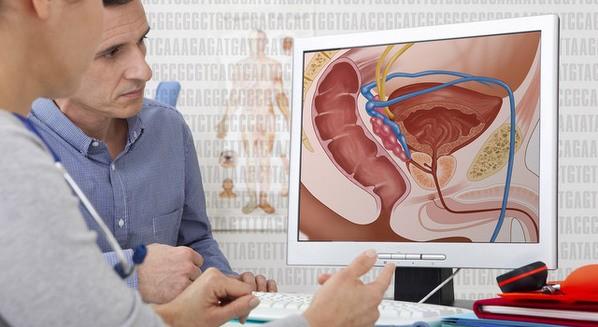 Prostatite: o que é, causas, sintomas e tratamento