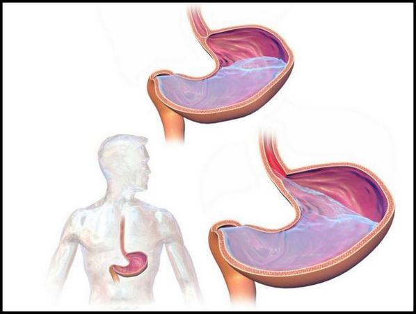 Refluxo gastroesofágico: o que é, causas, sintomas e tratamento