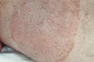 Tínea cruris em face interna da coxa