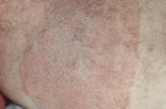Tínea cruris na face interna da coxa