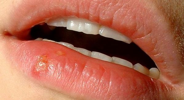 Transmissão do herpes labial