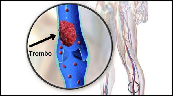 Trombose venosa profunda: o que é, sintomas e tratamento