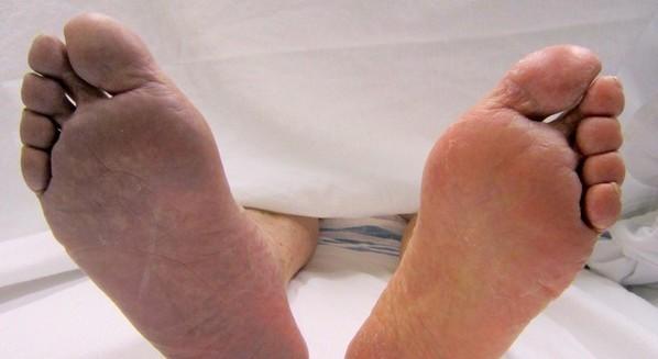 Sintomas de trombose