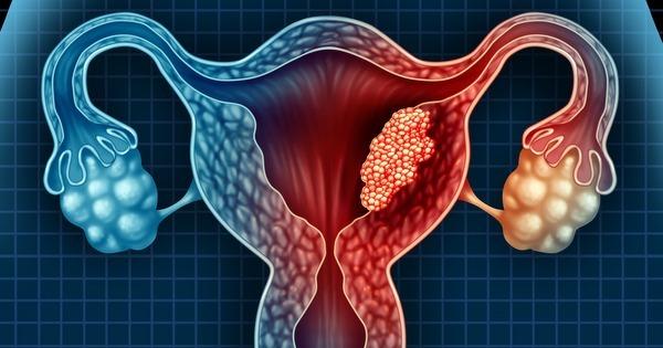 como es un polipo endometrial